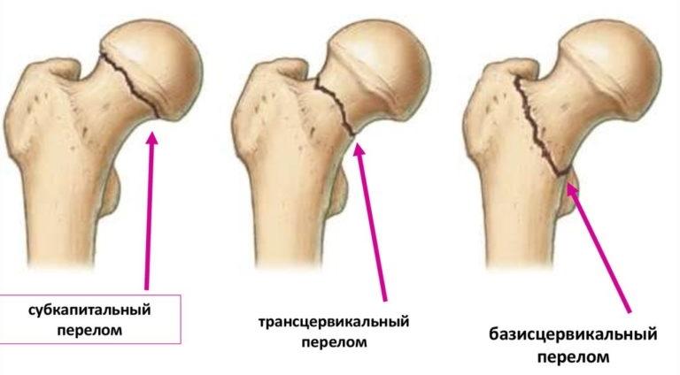 Кальций при остеопорозе