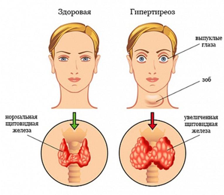 Заболевание гипотиреоз