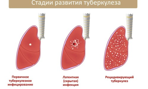 Диагноз туберкулез легких