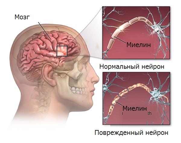 Рассеянный склероз мозга