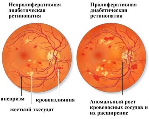 Диабетическая ретинопатия лечение