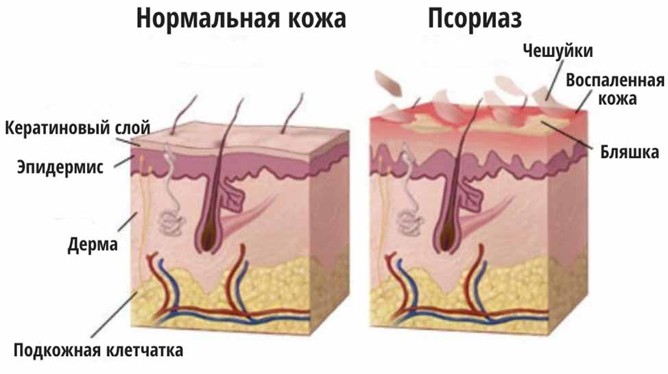 Псориаз кожи