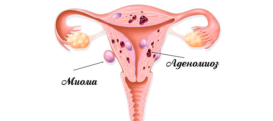 Воспалительный процесс у женщин