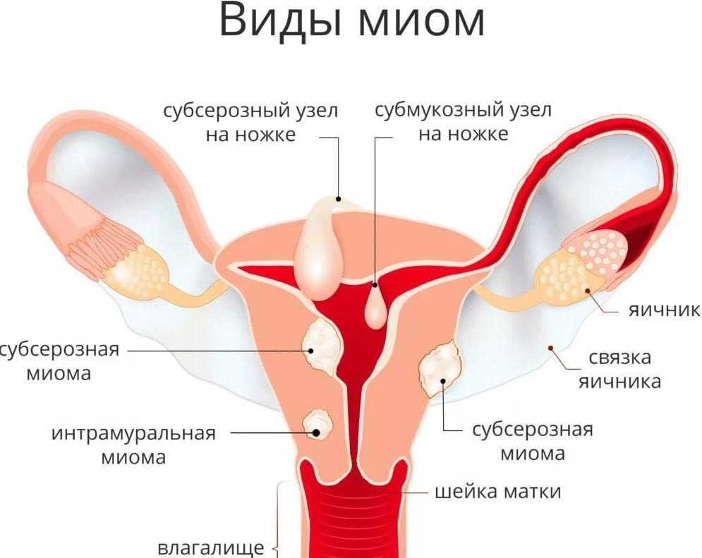 Миома матки у женщин