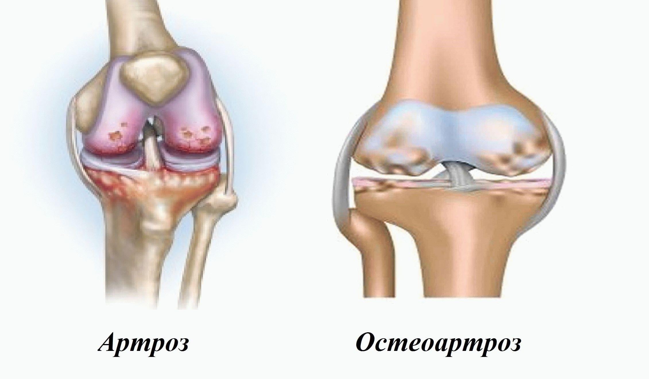 Заболевания костной ткани