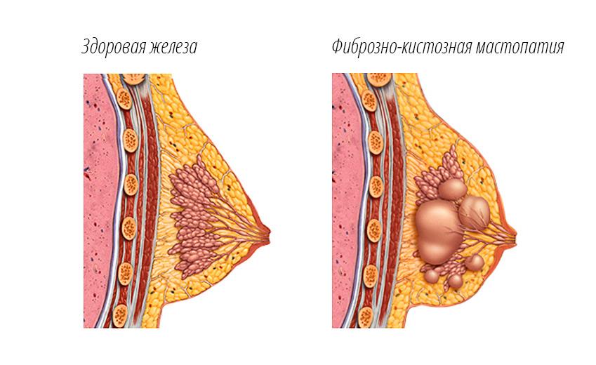Молочная железа мастопатия